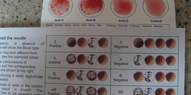 Eldon Home Blood Test Kit Review